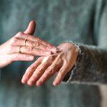 Lady with eczema on hand